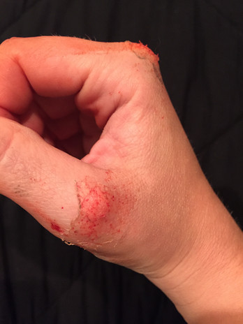 Scraped Knuckles
