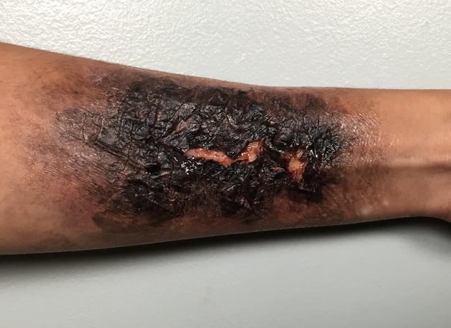 3rd Degree Burn