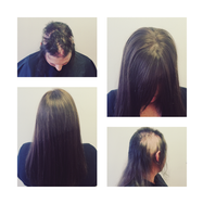 Alopcia Areata Hair Replacement