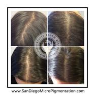 Female Scalp Micro Pigmentation