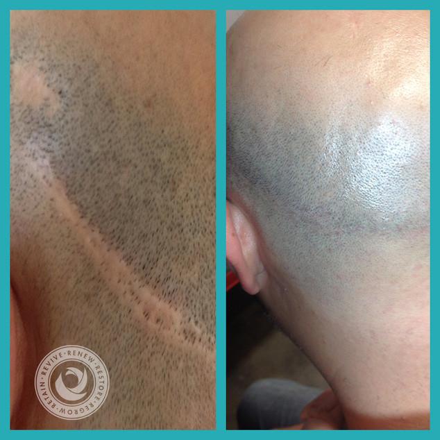 Hair Transplant Scar Repair