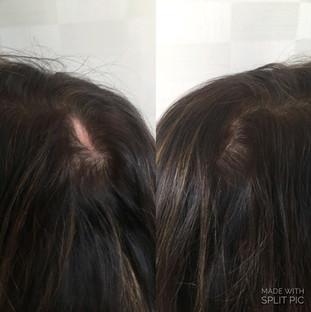 Invisible hair grafting