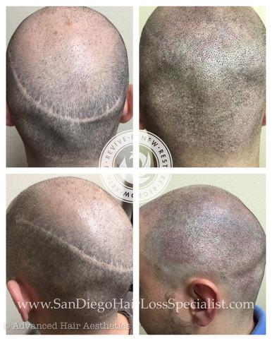 Scar Repair with Scalp Pigmentation