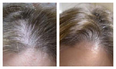 Hair Loss Recovery
