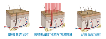NAtional Hairloss Laser Treatment Diagram for hair regrowth