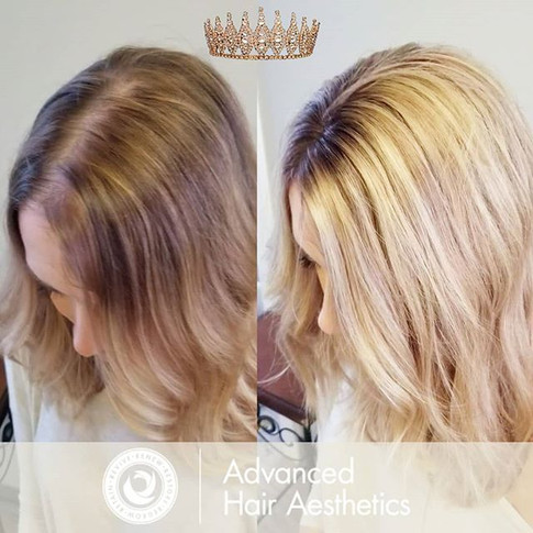 Crown Extension