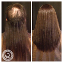 Hair Replacement San Diego