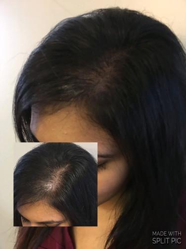 Women's Hair Loss Solution