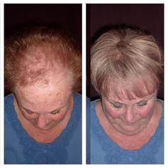 Human Hair Replacement