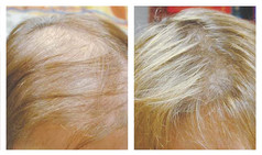 Hair Loss Laser Therapy