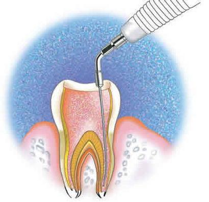 endodontia-clinica-lucmoura