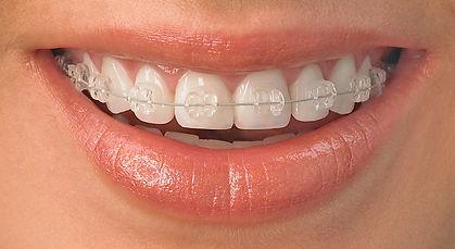 ortodontia-e-ortopedia-facila-clinica-lucmoura