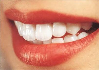 sorriso-perfeito-clínica-lucmoura