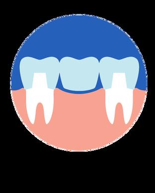 ทำฟันปลอม.png