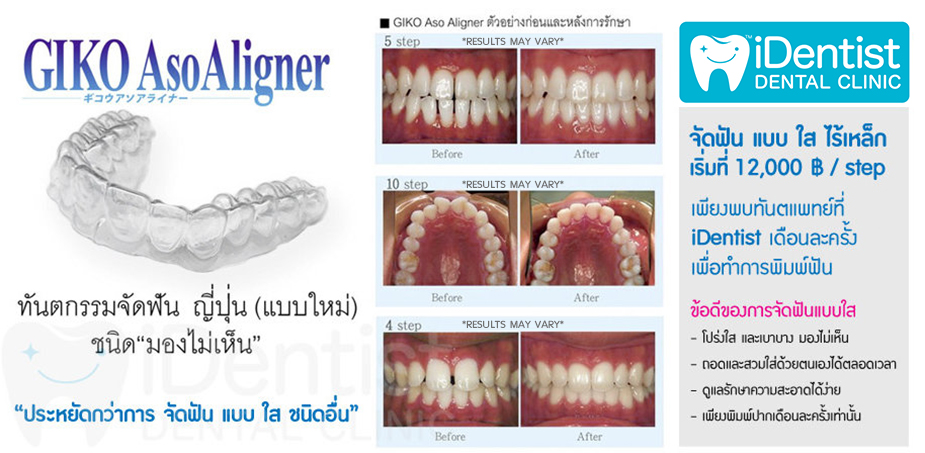 gallery_Giko_clear_aligner