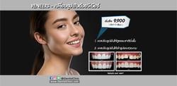 Veneers - เปลี่ยนรูปฟันด้วยวีเนียร์