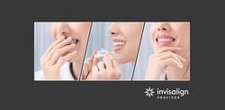 จัดฟันแบบใส invisalign