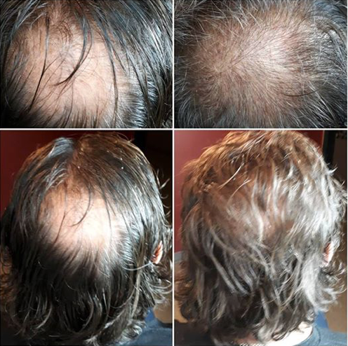 Scalp tattooing--smp