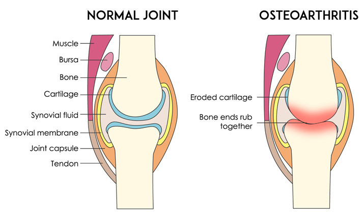treating-cartilage-damage-causes.jpg