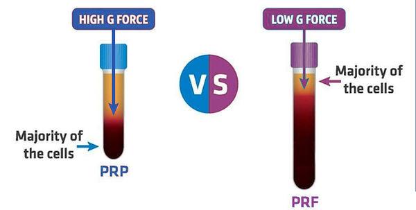 tubes PRF PRP.jpg