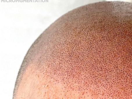 Kelowna Scalp Micro Pigmentation Clinic