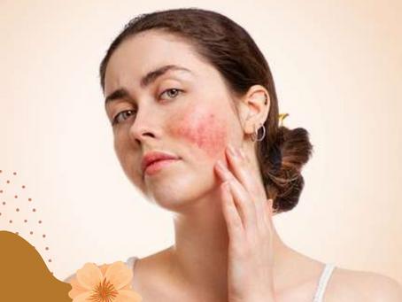 Dicas para aliviar o desconforto da pele sensível