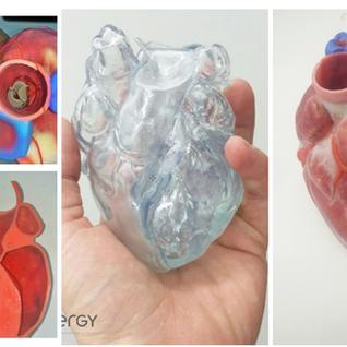 Heart segmentation
