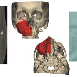 Mandible-fibula surgery