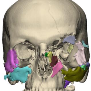 Face Fregmentation