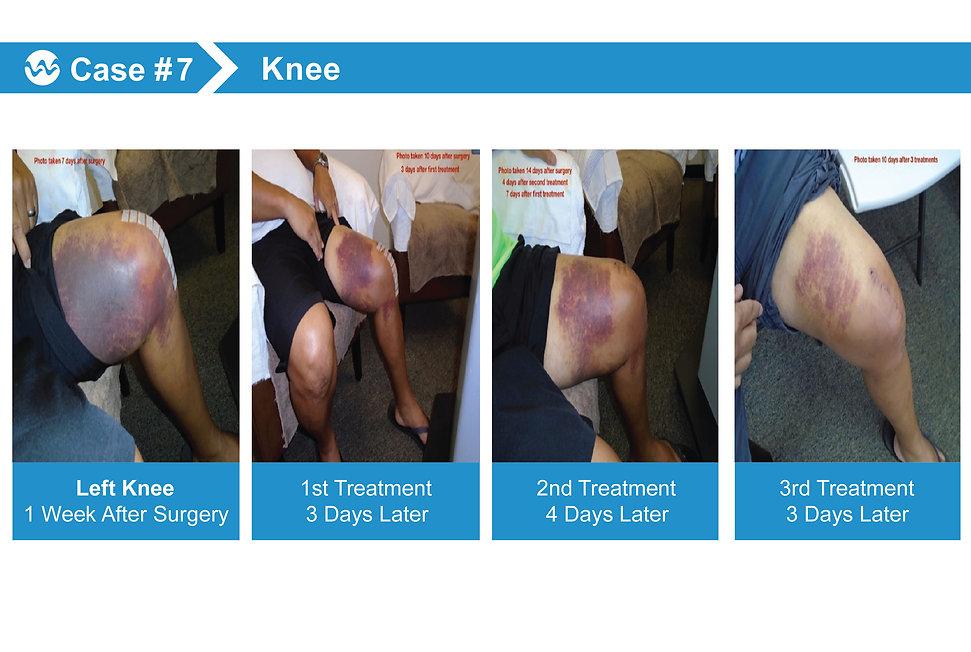 wound Case 7.jpg