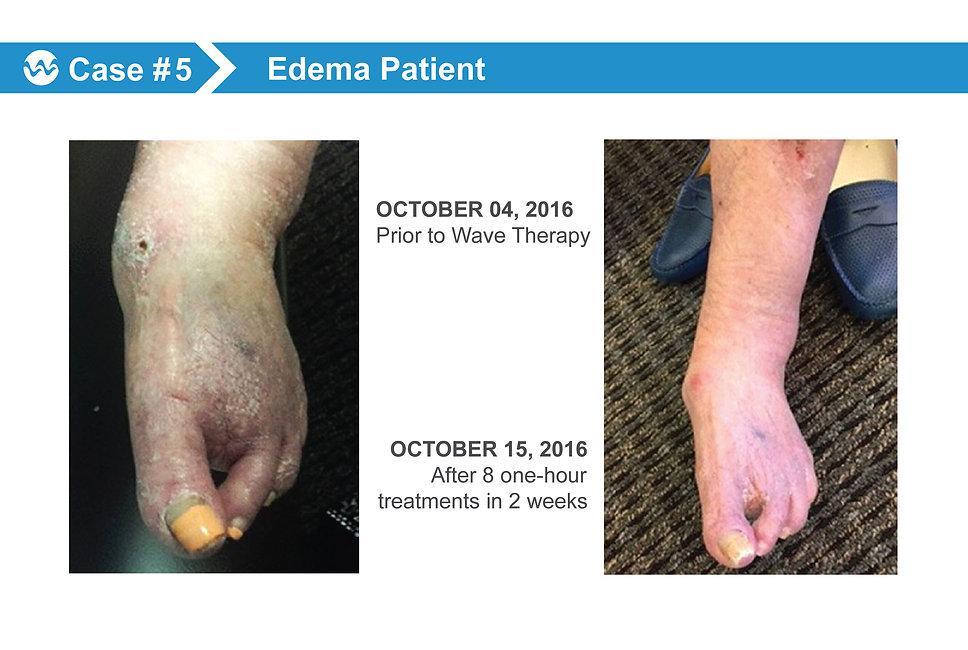 wound Case 5.jpg