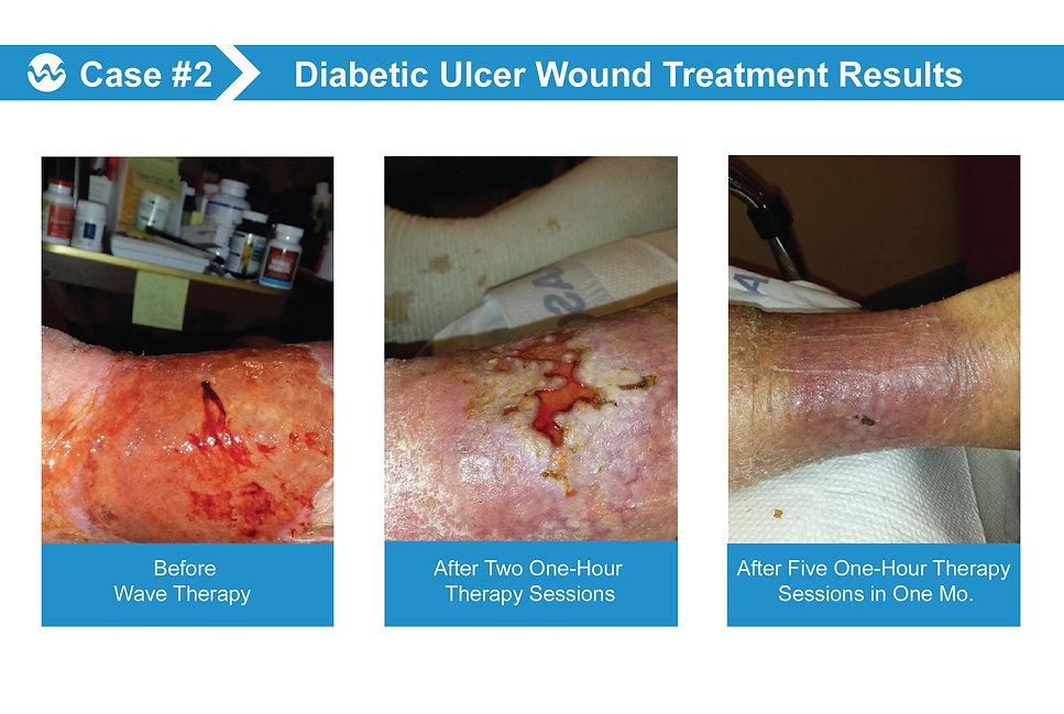 Wound Case 2.jpg