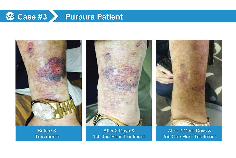 wound Case 3.jpg