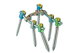 sequoia-pedicle-screw-system-hero-1.png
