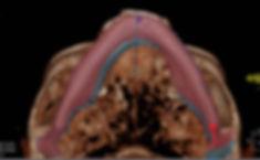 dolori articolazine mandibolare lugano ticino