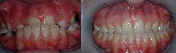 Ortodonzia Funzionale