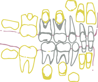 denti da latte_dentista locarno_ortodont