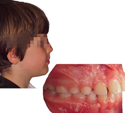 prima classe ortodonzia_ortodontista loc