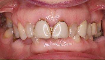 Ortodonzia Preprotetica Locarno