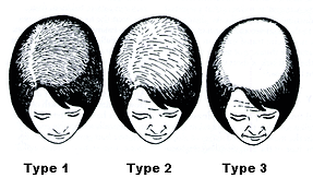 Ludwig scale hair loss for web.png