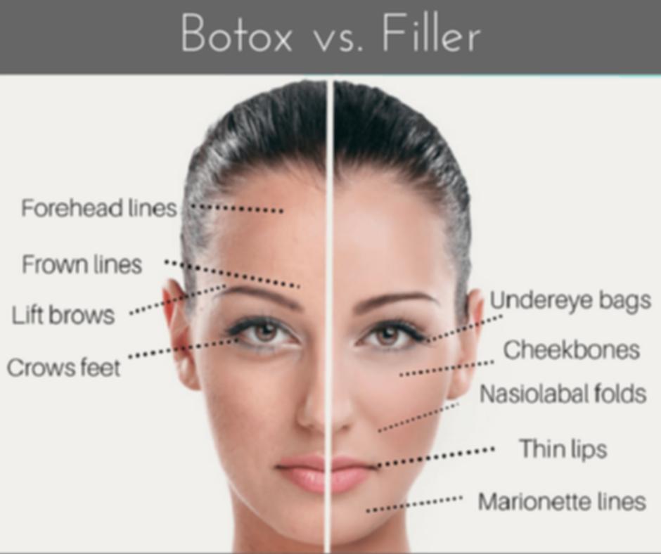 Botox.png