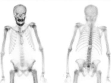 Reação osteogênica na cintilografia óssea