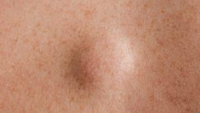 Tumores em tecidos moles - Lipoma