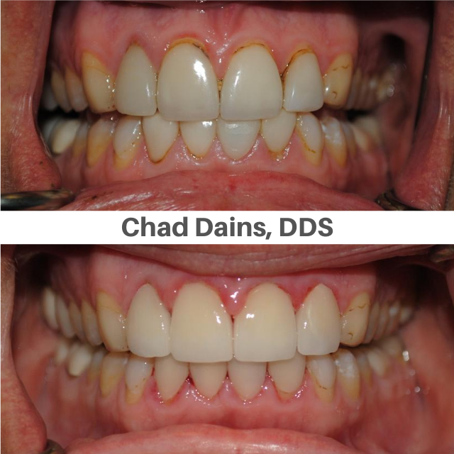 Veneers on Top Teeth