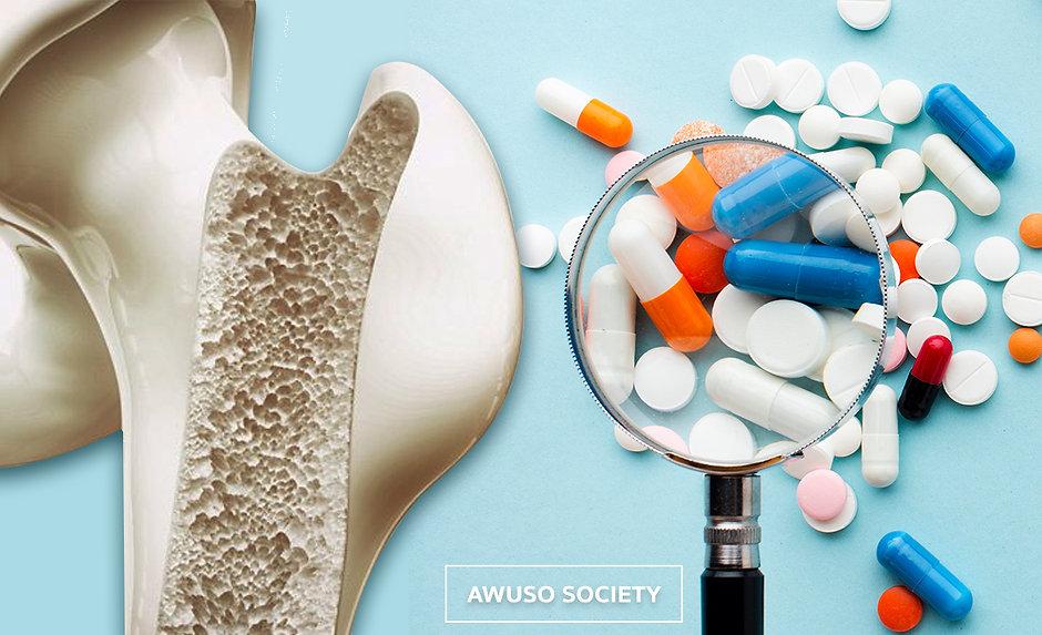 การเก็บยา กระดูกพรุน2 facebook.jpg