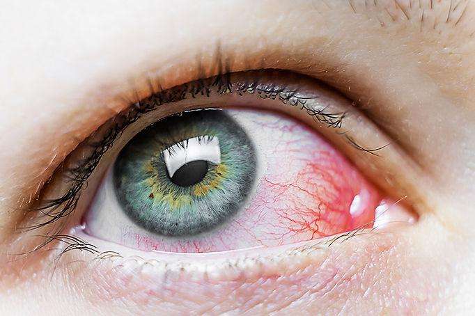 ตาแดง2.jpg