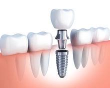 Implant Now #SmileMovement.jpeg