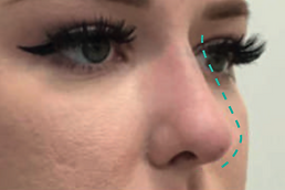 Nose Lift After.png
