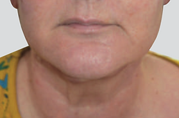 Neck Lift After.png