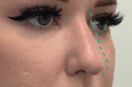 Nose Lift Before.png